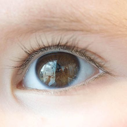 Taking a good photo of your eye for your optometrist